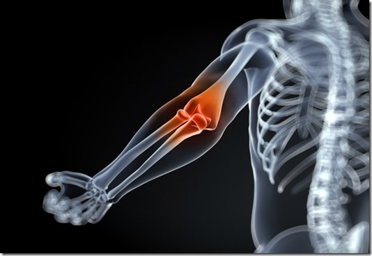 artritis remedio